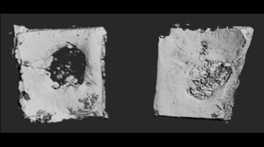 Имплантируемые био-пластыри ускоряют рост костей