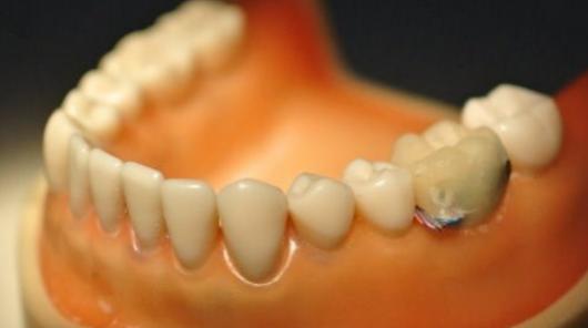 Ученые разработали зуб с Bluetooth