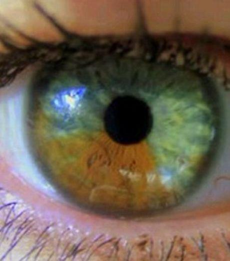 Как изменить карий цвет глаз на зеленый в домашних условиях - ЛЕГИОН